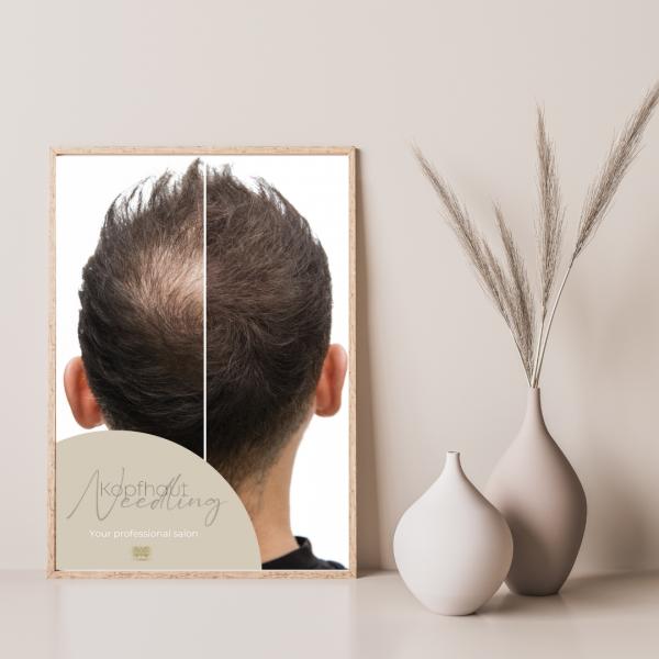 Poster Scalp Needling | DINA1